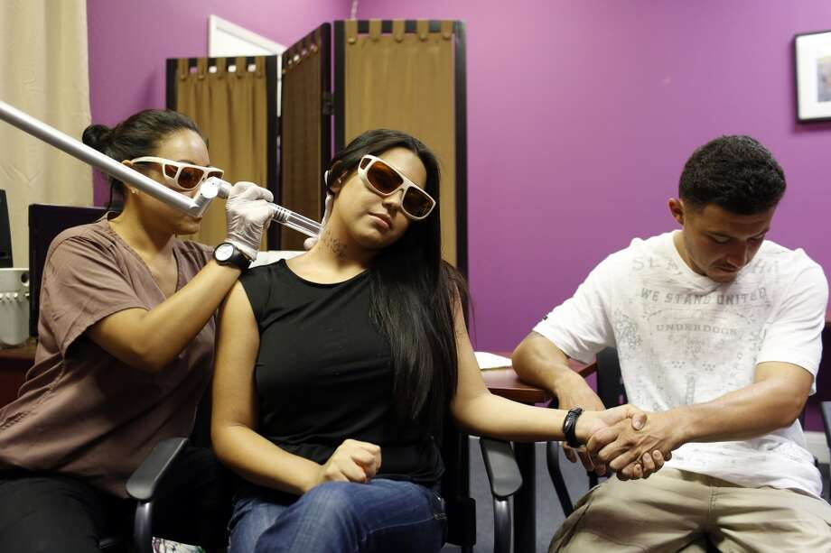 Elizabeth Lopez, center, gets a neck tattoo removed while holding her boyfriend Alejandro Curiel's hand during a tattoo removal treatment at the San Pablo Economic Development Corp. program Removing Barriers in San Pablo, Calif. on July 19, 2013.
