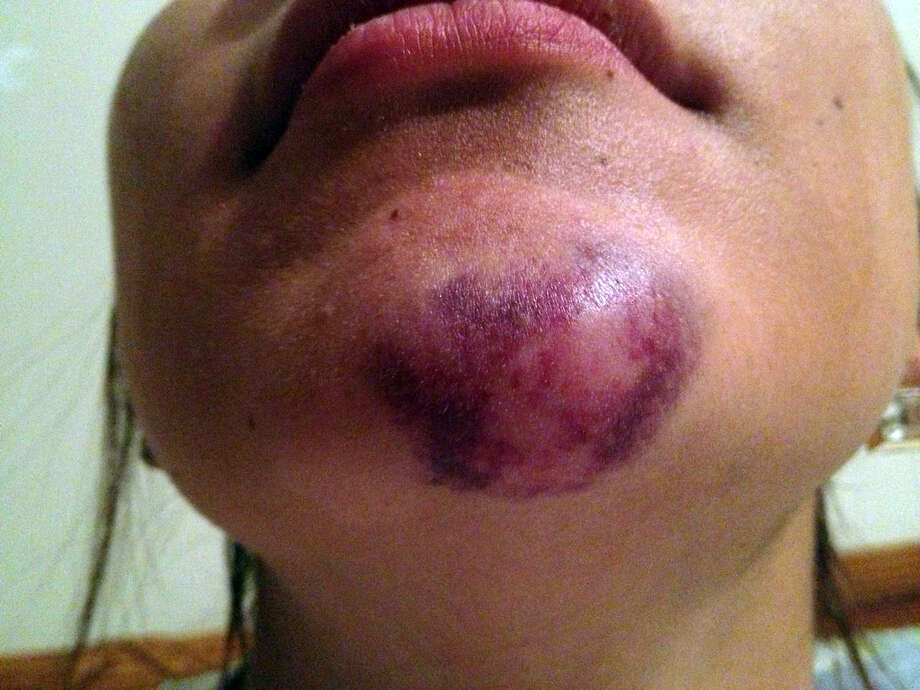 Texas State University student Alexis Alpha shows the injuries suffered to her chin.  Alpa. who is a senior marketing student and is from The Woodlands, is alleging that a San Marcos Police officer struck her casing the injuries.