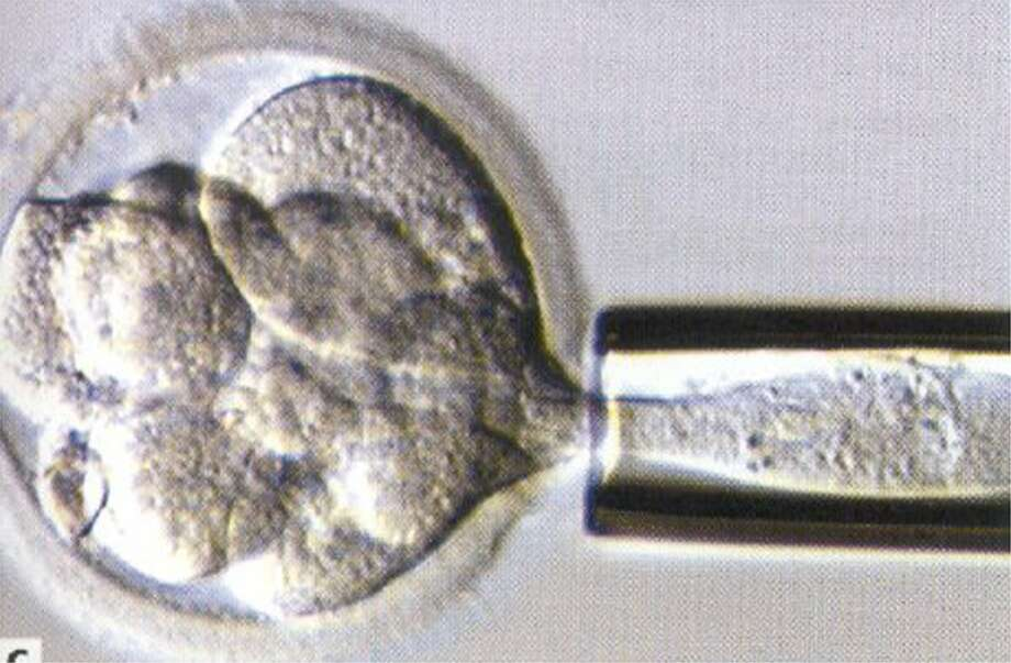 KRT US NEWS STORY SLUGGED: MED-BADGENES KRT PHOTOGRAPH VIA PHILADELPHIA INQUIRER (February 11) Under a microscope, a single cell is removed for DNA analysis while an embryo grows for another day. If the DNA analysis indicates the embryo is healthy, it will be placed in the woman's uterus to implant and start a pregnancy. (smd) 2003 Photo: HANDOUT, MBR / PHILADELPHIA INQUIRER