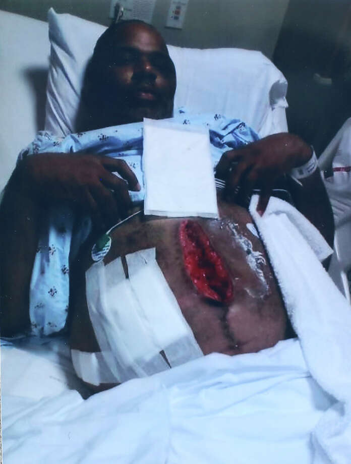 A photograph of Alonzo Lunsford's wounds where doctors had to repair his damaged organs through his stomach after he was shot seven times during the mass shooting at Ft. Hood. Photo: Lisa Krantz, San Antonio Express-News / San Antonio Express-News