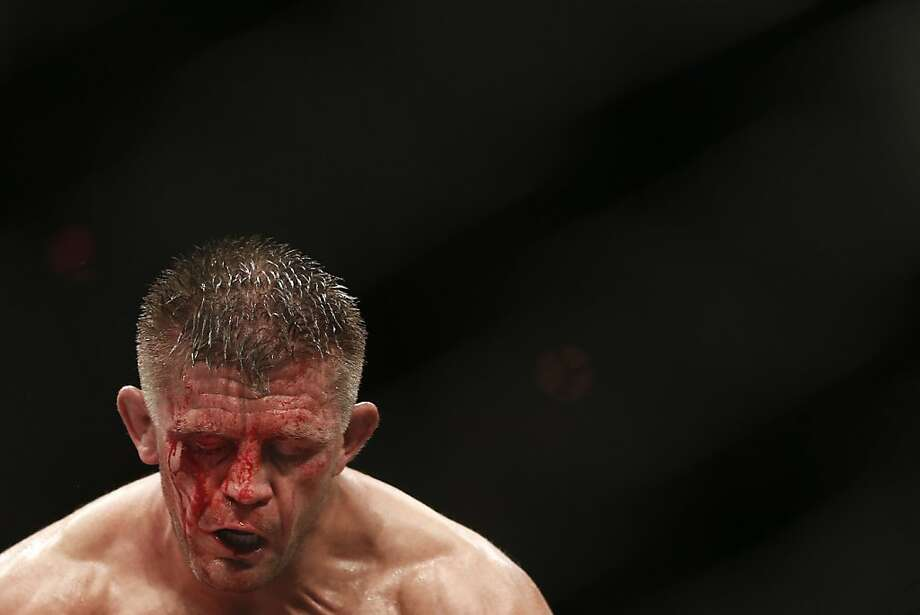 Tom Watson, from England, reacts during their UFC 163 mixed martial arts Middleweight bout against Thales Leites, from Brazil, in Rio de Janeiro, Brazil, Saturday, Aug. 3, 2013. (AP Photo/Felipe Dana) Photo: Felipe Dana, Associated Press
