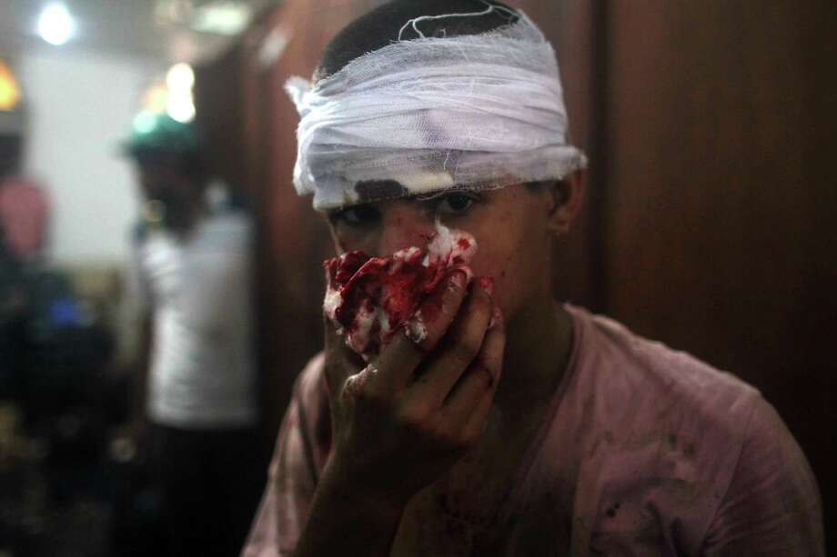 An injured Egyptian youth is seen at a makeshift hospital during clashes between supporters of Egypt's ousted president Mohamed Morsi and police in Cairo on August 14, 2013, as security forces backed by bulldozers moved in on two huge pro-Morsi protest camps, launching a long-threatened crackdown that left dozens dead. The clearance operation began shortly after dawn when security forces surrounded the sprawling Rabaa al-Adawiya camp in east Cairo and a similar one at Al-Nahda square, in the centre of the capital. Photo: MOSAAB EL-SHAMY, AFP/Getty Images / AFP