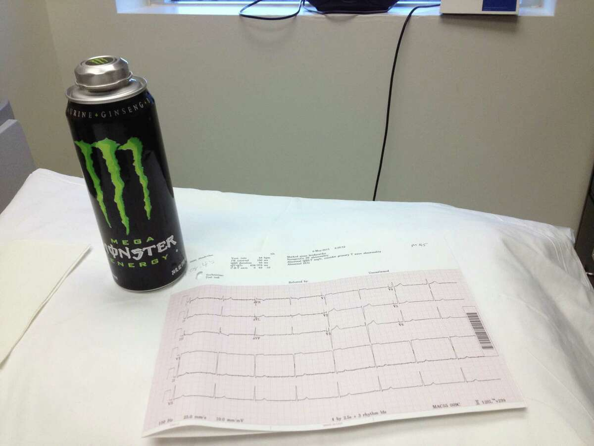 Dr. John Higgins's research focuses on the effect of energy drinks on the heart.