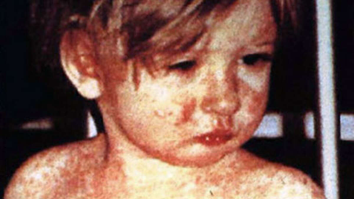This undated file photo from the Centers for Disease Control & Prevention shows a child covered with the measles rash.