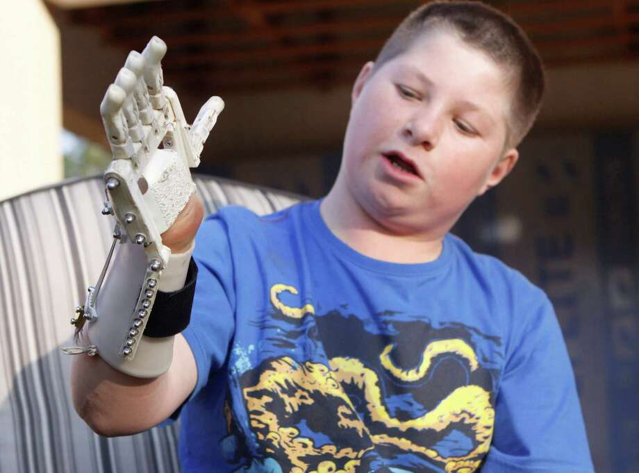 In this photo taken Friday, Aug. 23, 2013 Dylan Laas shows how his Robohand works during an interview with the Associated Press in Johannesburg. Laas who was born with Amniotic Band Syndrome, got his hand from carpenter, Richard van As who lost four fingers to a circular saw two years ago and started workin on building the Robohand after seeing a video posted online of a mechanical hand made for a costume in a theater production. Since then van As has fitted Robohands on about 170 people, from toddlers to adults. Photo: Denis Farrell