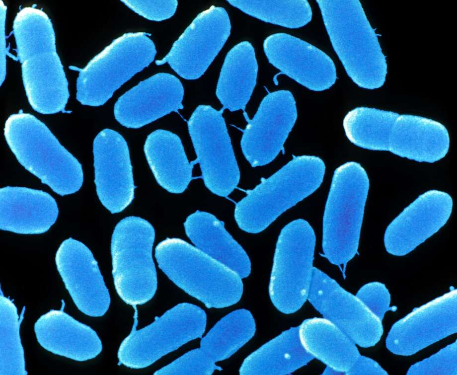 Listeria14 percent of items tested positive for listeria. The refrigerator vegetable compartment contained listeria, as did the refrigerator door seal. Photo: CMSP, Getty Images/Custom Medical Stock Photo RM