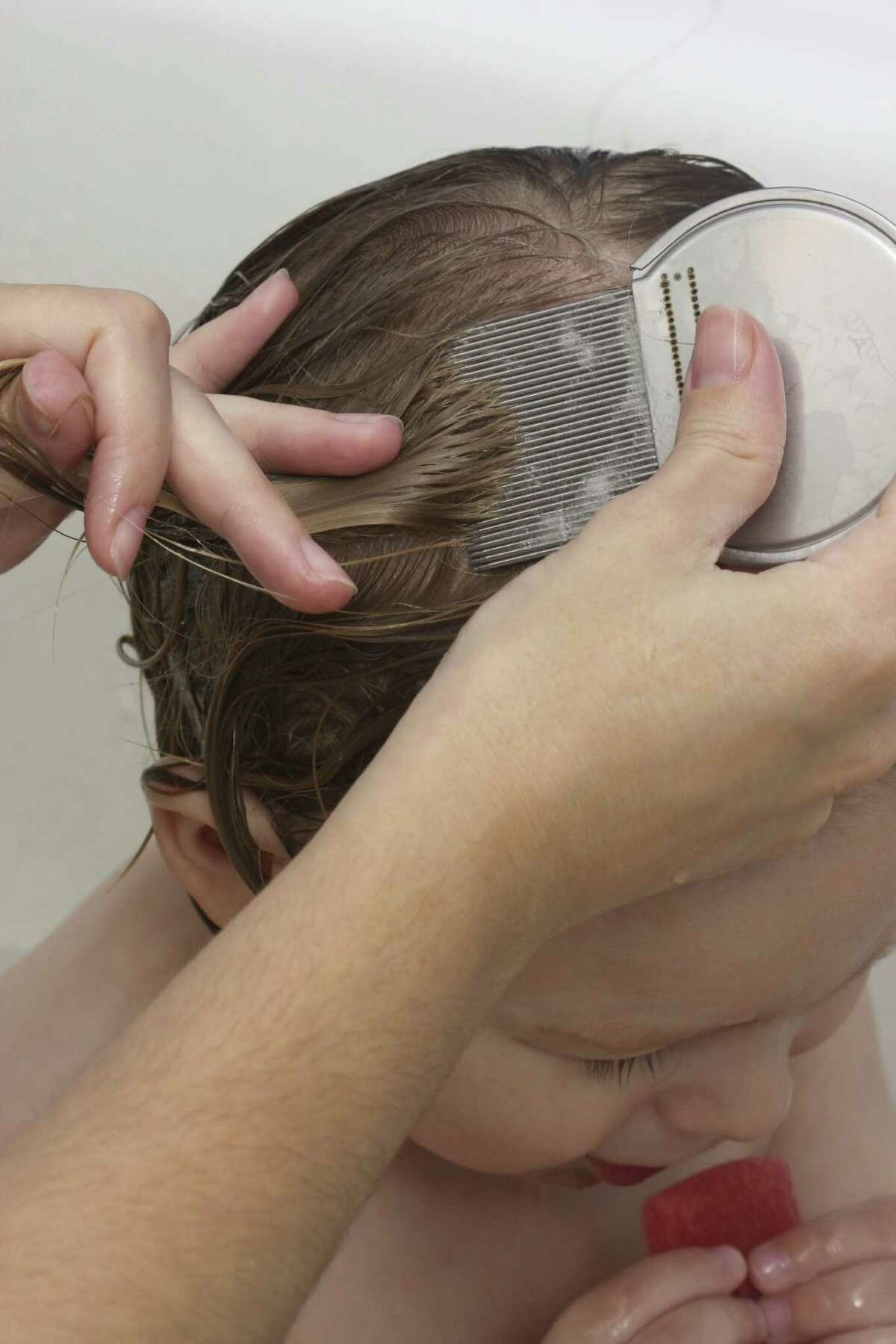 A nit comb will comb out dead lice or loosened nits.