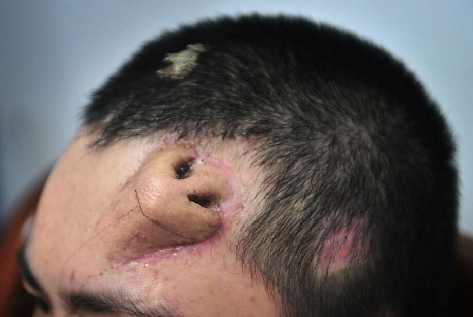Gee your hair smells:Surgeons in Fuzhou, China, are growing a nose on a patient's forehead in order to replace his original nose, which was badly injured in an accident. Photo: Stringer, AFP/Getty Images