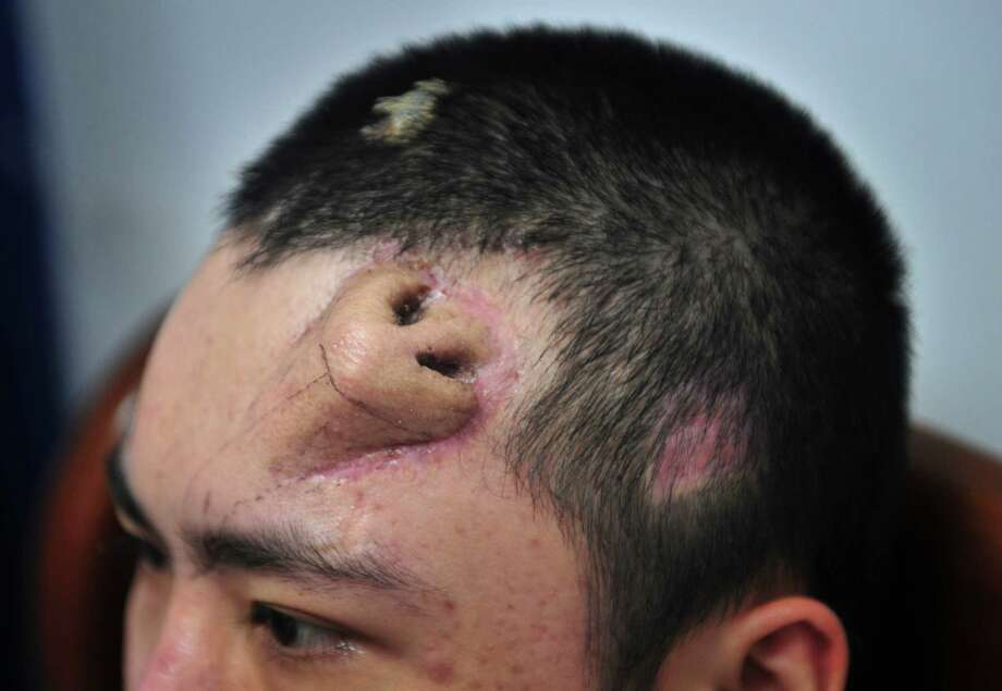 In this Tuesday Sept. 24, 2013 photo, a 22-year-old patient, with a surgical made extra nose out of his rib cartilage and implanted under the skin of his forehead, rests at Fujian Medical University Union Hospital, in Fuzhou city, in southeast China's Fujian province. A surgeon in China said he has constructed the extra nose to prepare for a transplant in probably the first operation of its kind. Surgeon Guo Zhihui at the hospital spent nine months cultivating the graft for the man whose nose was damaged. (AP Photo)  Photo: AP