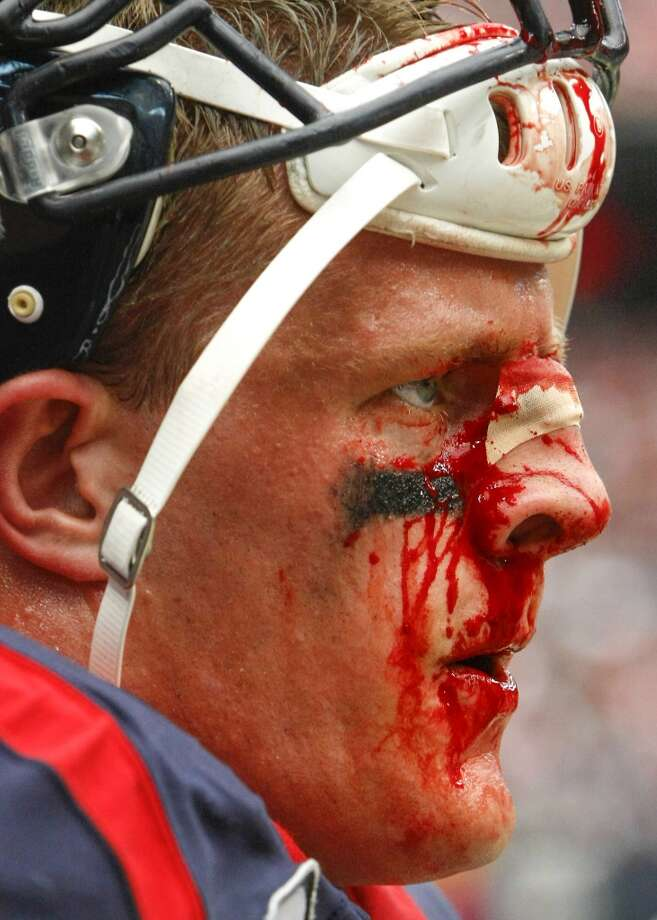 Blood runs down Houston Texans defensive end J.J. Watt's face during the second half. Photo: Cody Duty, Houston Chronicle