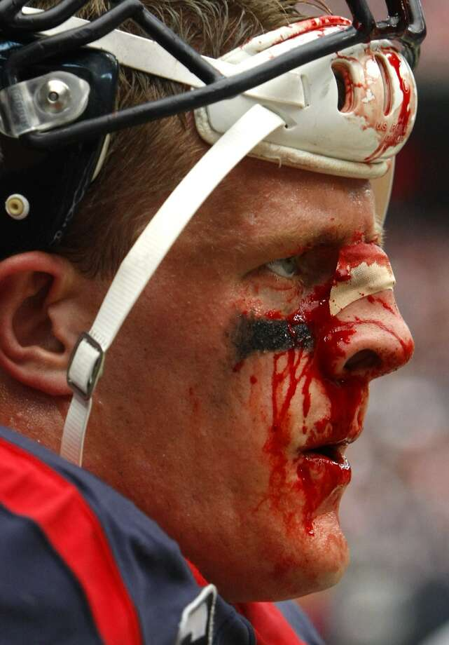 Blood runs down Houston Texans defensive end J.J. Watt's face during the second half of an NFL football game against the Seattle Seahawks at Reliant Stadium, Sunday, Sept. 29, 2013, in Houston. The Texans lost 20-23. (Cody Duty / Houston Chronicle) Photo: Cody Duty, Houston Chronicle