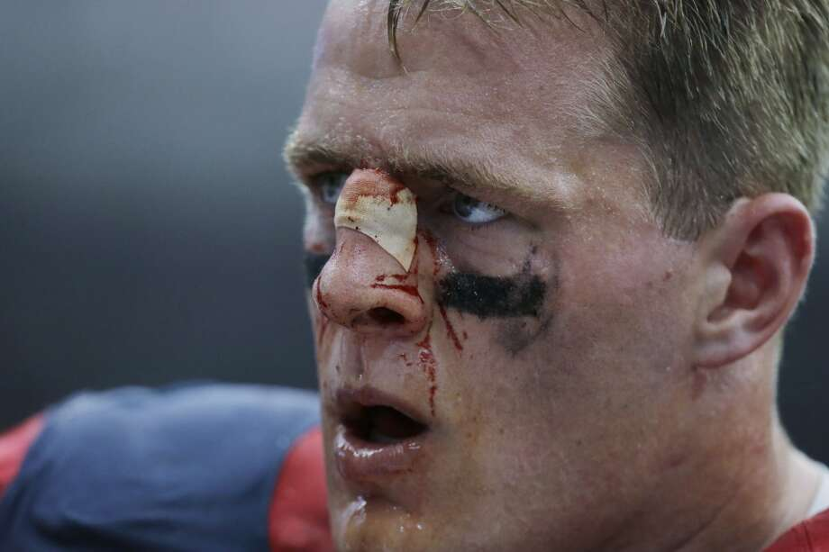 A bloodied Houston Texans' J.J. Watt stands on the sideline during the fourth quarter an NFL football game against the Seattle Seahawks, Sunday, Sept. 29, 2013, in Houston. (AP Photo/Patric Schneider) Photo: Patric Schneider, Associated Press