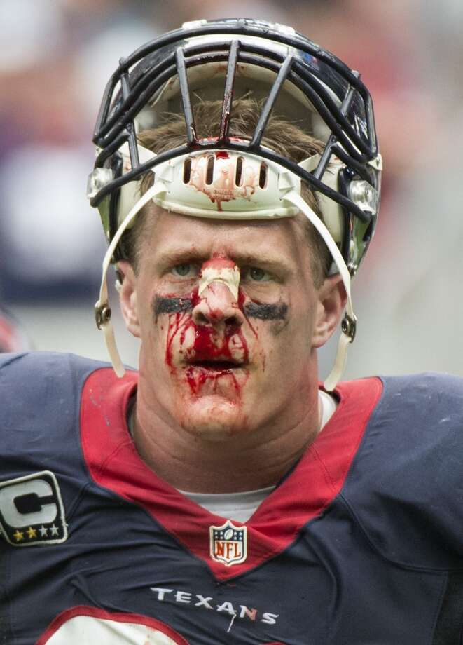 J.J. Watt (99) of the Houston Texans is bloodied as he walks off the field in the second half of a 23-20 overtime loss to the Seattle Seahawks on Sunday, September 29, 2013, in Houston, Texas. (George Bridges/MCT) Photo: George Bridges, McClatchy-Tribune News Service