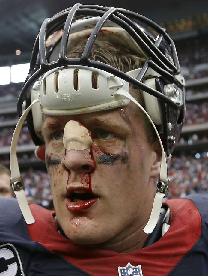 A bloodied J.J. Watt leaves Houston's overtime loss to Seattle. Photo: David J. Phillip, Associated Press