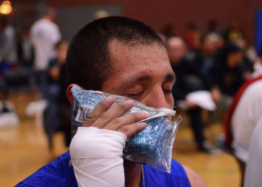 Alonso Rios from the Squared Circle Boxing Club ices his face after fighting Michael Powel from the Wildcat's Boxing Club during the 4th annual Central District Boxing Revival Saturday, Oct. 5, 2013 at the Garfield Community Center in Seattle. Boxers from all over the Northwest region, ranging from ages 8-34, competed in Saturday's event. Photo: SY BEAN, SEATTLEPI.COM / SEATTLEPI.COM