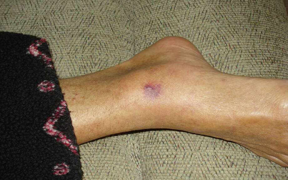 A photo from Patty Konietzky shows a lesion on her husband's ankle. Though both were in the same water, Patty Konietzky wasn't infected.