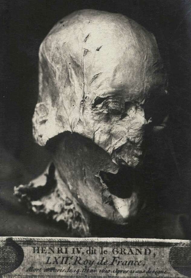 This photo dated Thursday Dec. 16, 2010 and provided by Galaxie Presse shows what is believed to be the head of former French King Henry IV pictured in the 1930s. A 400-year-old skull that French researchers believe was the head of celebrated King Henri IV was squirreled away for decades in the attic of a now-retired public servant, and now has been handed over to one of his Bourbon dynasty descendants. (AP Photo/Galaxie Presse)  Photo: Anonymous, AP / A2010