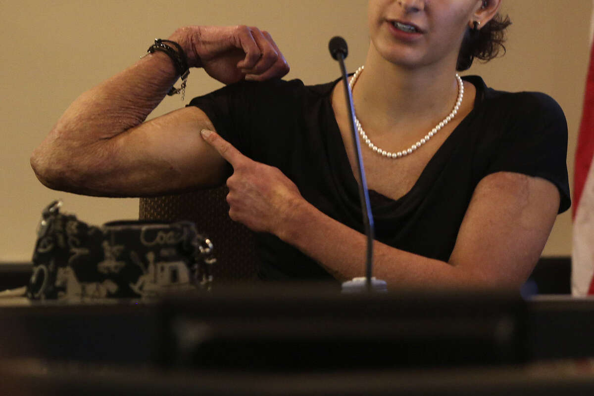 Burn victim Megan Baldonado testifies during the punishment-only trial of her former fiance, Lee Griego.