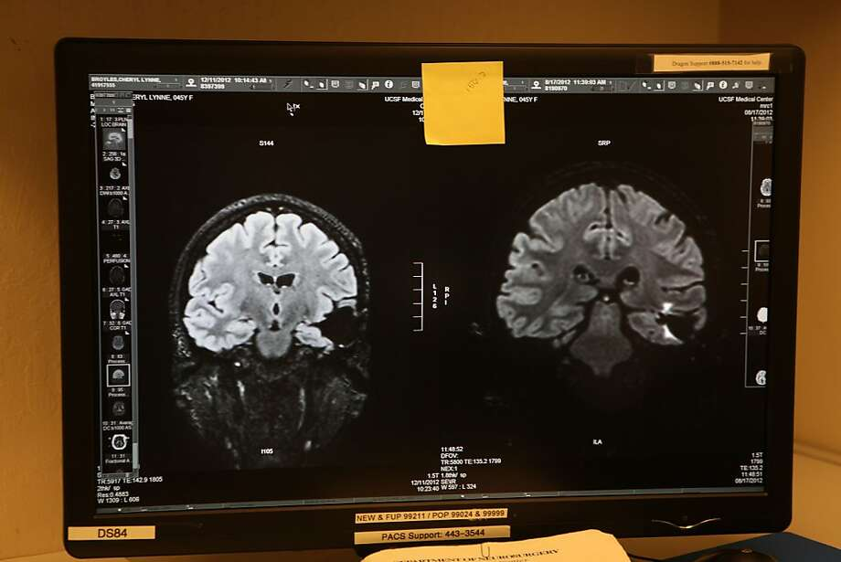 San Francisco researchers may have found a new treatment for glioblastoma, an aggressive and deadly brain cancer. Photo: Liz Hafalia, The Chronicle