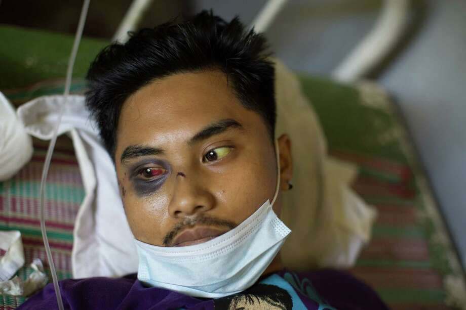 Richard Pulga, a farmer whose leg was broken by a flying coconut during Typhoon Haiyan, lies in a hospital Wednesday in Tacloban, Philippines. Having received no antibiotics and scant care, Pulga died Friday. Photo: TYLER HICKS, STF / NYTNS