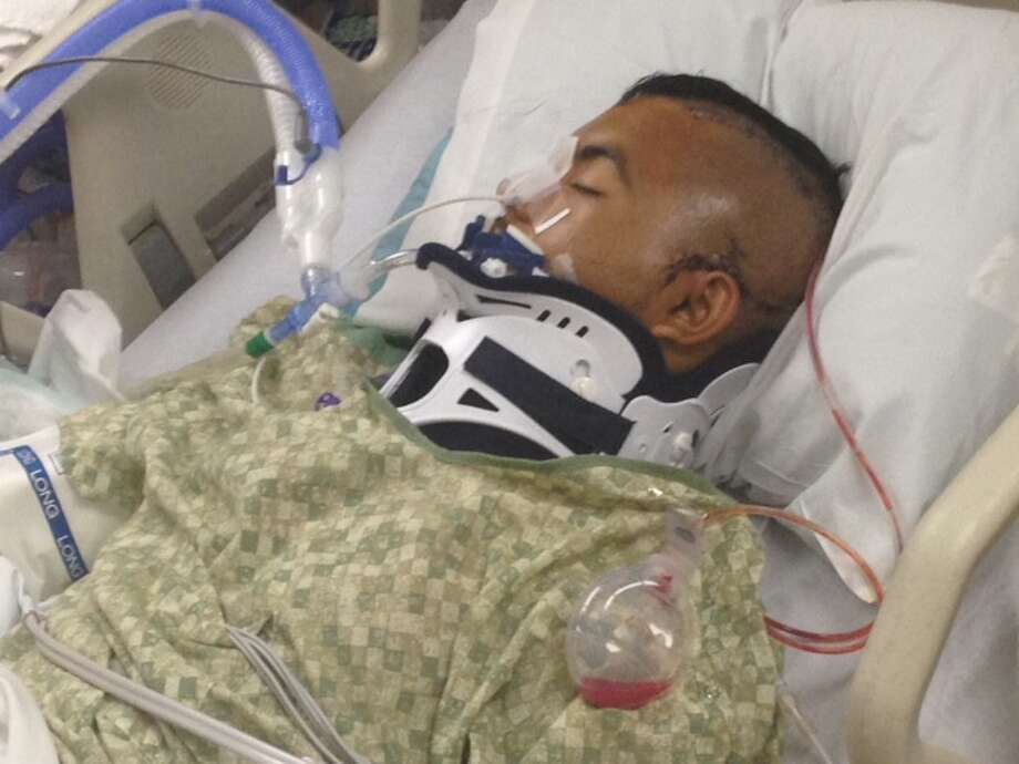 Noe Nino de Rivera, 17, is in a medically induced coma after he was Tasered by an officer at school. Photo: HANDOUT