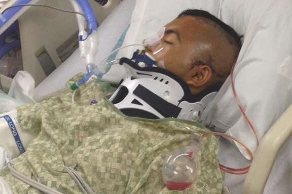 Noe Nino de Rivera, 17, is in a medically induced coma after he was Tasered by an officer at school.