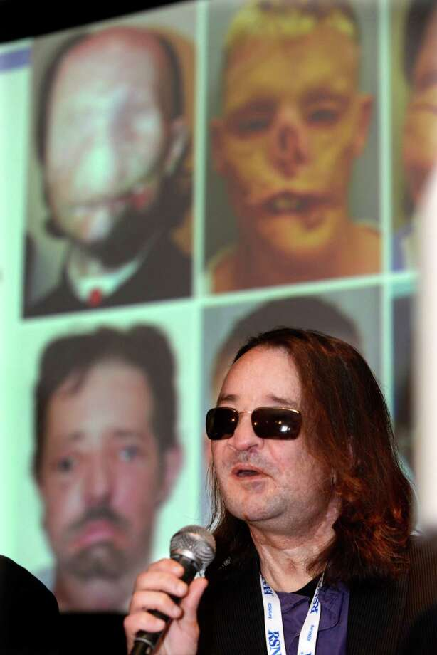 The nation's first full face transplant patient Dallas Wiens speaks during a news conference at McCormick Place in Chicago, Wednesday, Dec. 4, 2013. Top left photo and bottom left photo in the background are of Wiens. Despite still visible facial scars from the March 2011 surgery, Wiens looks and sounds like a recovered man. Medical imaging shows new blood vessel networks have formed, connecting transplanted skin with the patients' facial tissue, a finding that may help improve future face transplant surgeries, doctors announced Wednesday. Photo: Paul Beaty, AP / AP2013