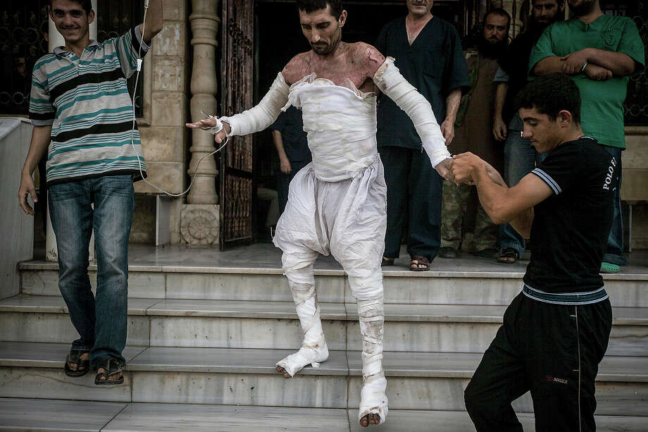 A Syrian man with more than half his body burnt from an air strike leaves a field hospital to go back home at a village turned into a battlefield with government forces in Idlib province, northern Syria, Sept. 22, 2013. Photo: STR, ASSOCIATED PRESS / AP2013