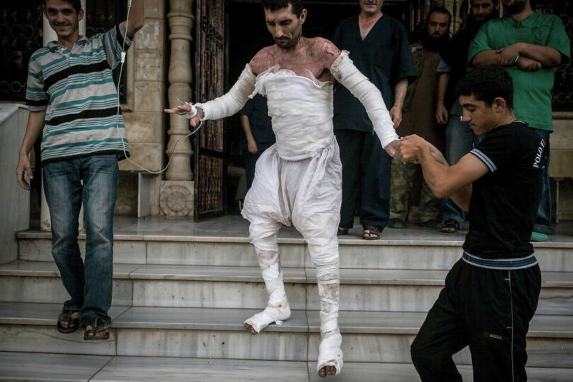 A Syrian man with more than half his body burnt from an air strike leaves a field hospital to go bac