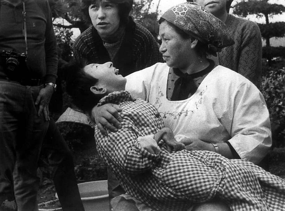 """From 1932 to 1968 the Japanese chemical company Chisso (they now make LCD screens) polluted Minamata, Japan with methylmercury in waste water. A neurological syndrome caused by mercury poisoning is now known as """"Minamata Disease."""" Over 2,000 victims have been certified by the government for purposes of financial reimbursement, and litigation is still ongoing. Photo: ASSOCIATED PRESS"""