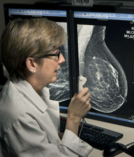 Dr. Emily F. Conant of at the University of Pennsylvania, says 3D mammography is more effective at detecting cancers than conventional digital mamography. Photo: University Of Pennsylvania