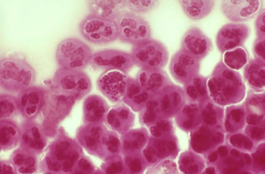 A sexually transmitted disease. Photo: G W Willis, Getty Images / (c) G W Willis