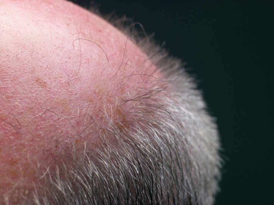 Don't give remedies for balding. Photo: Christopher Robbins, Getty Images / (c) Christopher Robbins