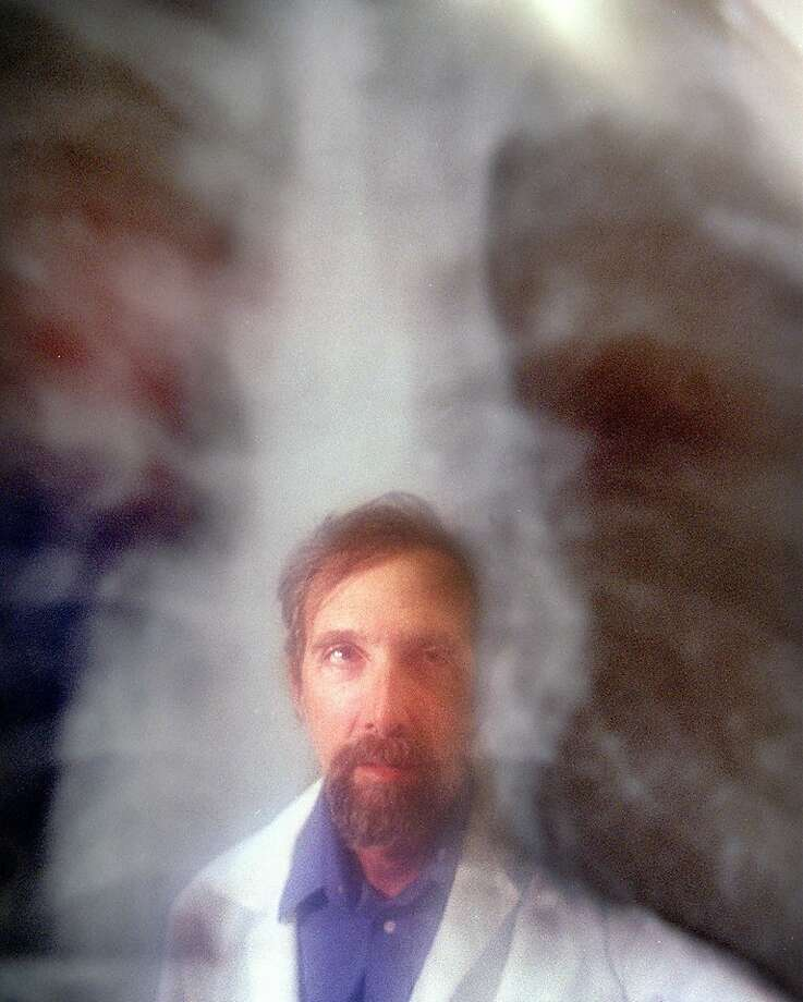 Dr. Charles Crane examines an X-ray of a tuberculosis patient in 1999. During that time, the disease had been a major health problem in West Contra Costa County. There are concerns about more problems occurring today in California. Photo: Frederic Larson, SFC