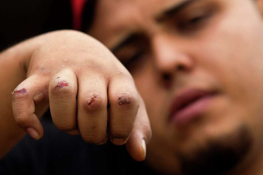 Osby Pinles shows his bloody knuckles after he tried to pull two female pit bulls off a woman around 