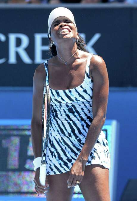 For Venus Williams, it was a short but agonizing stay in the Australian Open. Photo: MAL FAIRCLOUGH, Stringer / AFP