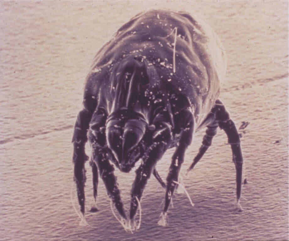 Dust mites are microscopic  but  cause significant allergy problems in the home. Photo: Courtesy American Academy Of All