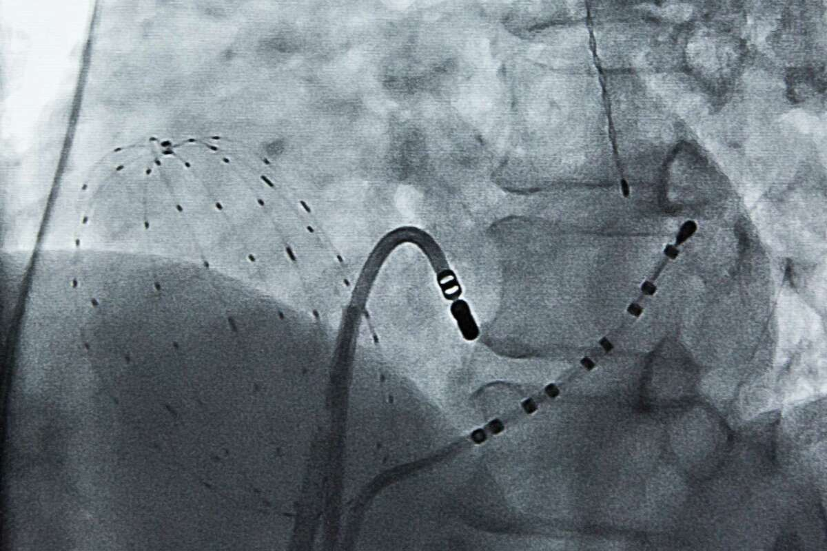 The FIRMap Catheter is inserted inside specific areas of the heart to show electrical activity.