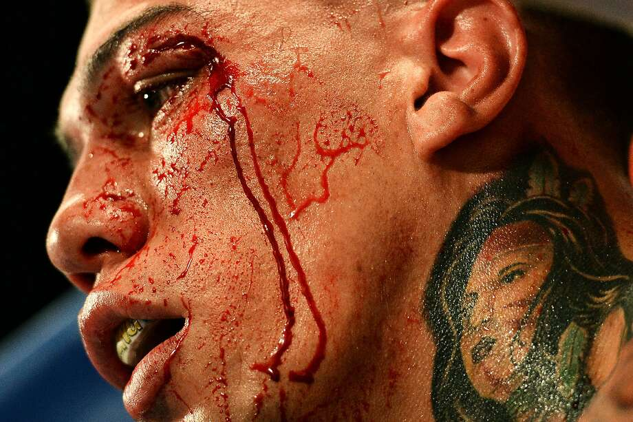 WASHINGTON, DC - JANUARY 25: Gabriel Rosado bleeds in his corner between rounds against Jermell Charlo in their WBC Continental Americas Title match at the DC Armory on January 25, 2014 in Washington, DC. (Photo by Patrick Smith/Getty Images) Photo: Patrick Smith, Getty Images