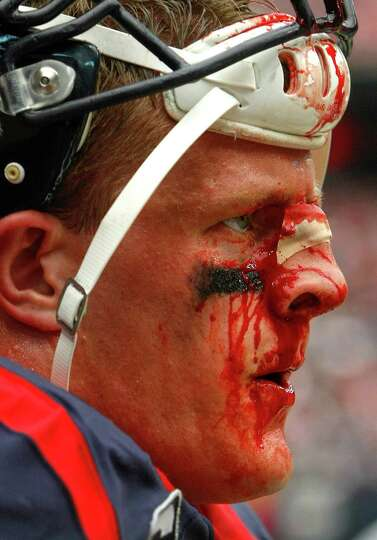 Blood runs down Houston Texans defensive end J.J. Watt's face during the second half of an NFL footb