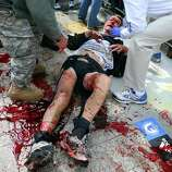 BOSTON - APRIL 15: (EDITOR'S NOTE: THIS IMAGE CONTAINS GRAPHIC CONTENT) A victim of the first explosion is helped on the sidewalk of Boylston Street, after two explosions went off near the finish line of the 117th Boston Marathon. (Photo by John Tlumacki/The Boston Globe via Getty Images)