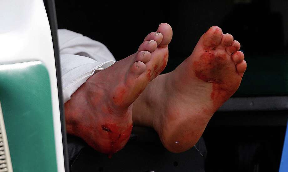 BOSTON, MA - APRIL 15:  Two blood stained feet of a man hang outside an ambulance outside a medical tent located near the finish of the 117th Boston Marathon after two bombs exploded on the marathon route on April 15, 2013 in Boston, Massachusetts. Two people are confirmed dead and at least 23 injured after two explosions went off near the finish line to the marathon. (Photo by Jim Rogash/Getty Images) Photo: Jim Rogash, Wire / 2013 Getty Images