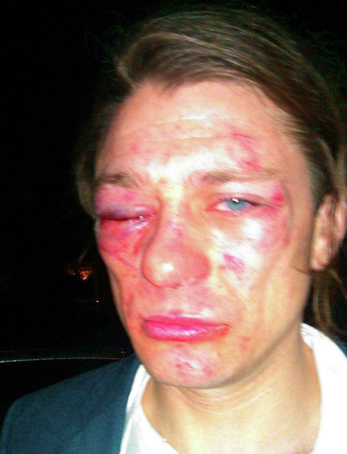 """Cody Robinson, 30, says he was the victim of a """"knockout game"""" attack early Friday on the Northwest Side."""