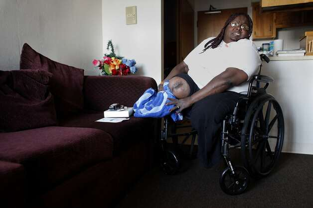 Juanita Coleman Hasnat, 46 years old, cleans her leg wound, Tuesday,  October 22, 2013, in her apartment at Nevin Plaza in Richmond, Calif. Juanita had both legs amputated in 2010 after contracting the infectious disease,  MRSA, Methicilin-resistant Staphylococcus aureus. Photo: Lacy Atkins, The Chronicle
