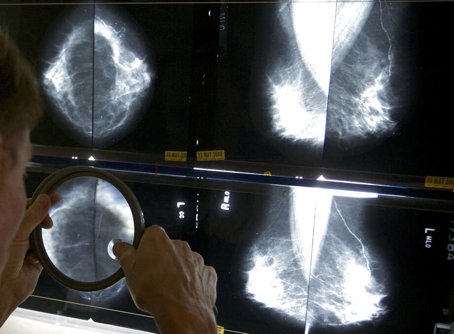 A radiologist uses a magnifying glass to look for breast cancer. A Canadian study is questioning the value of mammograms. Photo: Damian Dovarganes / Associated Press / AP
