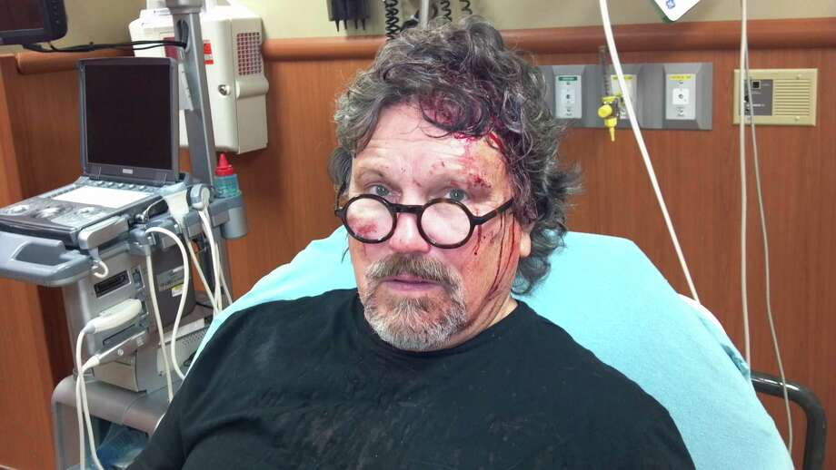 Mitch Wilkins was attacked by a robber in October 2012. Photo: Courtesy Photo