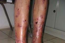 Late stage skin ulcers in a patient with diffuse lepromatous leprosy, a severe potentially lethal form of leprosy.