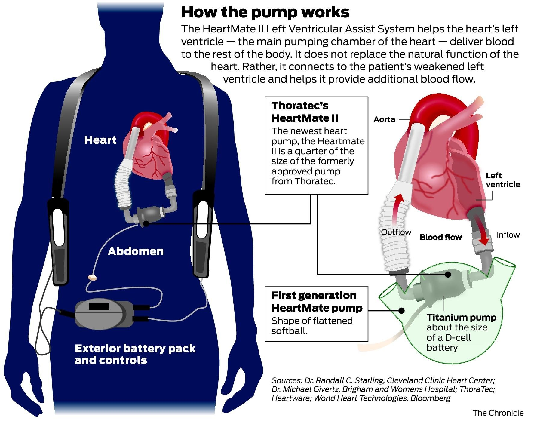 thoratec warns of heart pump u0026 39 s link to 4 patient deaths