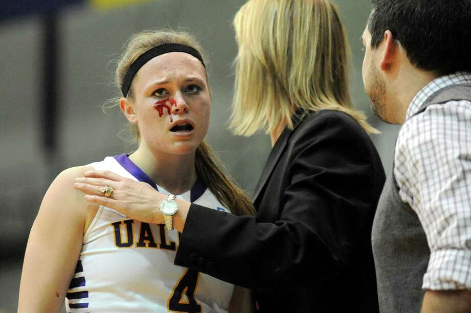 UAlbany's Sarah Royals, left, gets a bloody cheek when she hits the deck during their first-round basketball game in the America East Tournament on Friday, March 7, 2014, at SEFCU Arena in Albany, N.Y. (Cindy Schultz / Times Union) Photo: Cindy Schultz / 00026024A