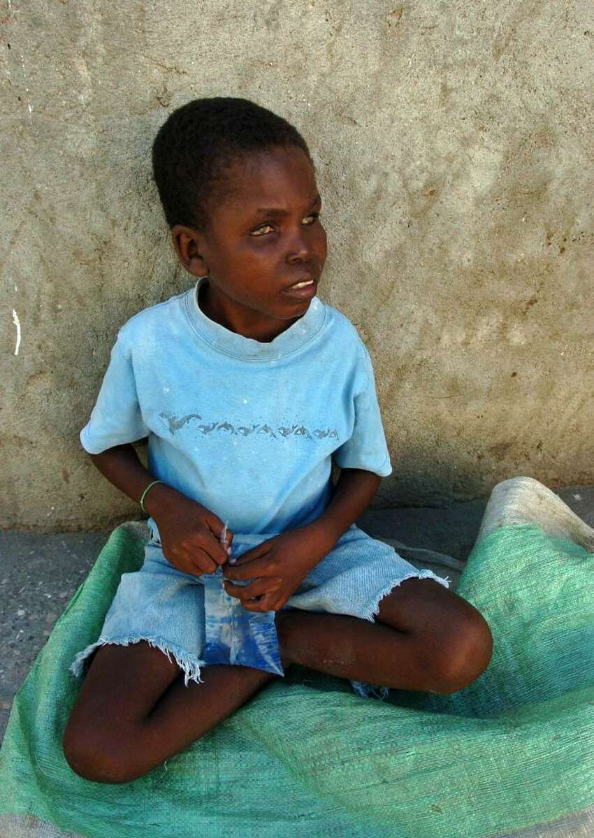 Everyday this little blind boy, sits on a plastic tablecloth leaning against a wall and stares aimlessly at the road as hundreds of people pass him climbing the hill on their way to the Justinien Hospital in Cap-Haitien. He looks to be about six years old but a nearby woman claims he is 11. The plate in front of him is empty of donations.